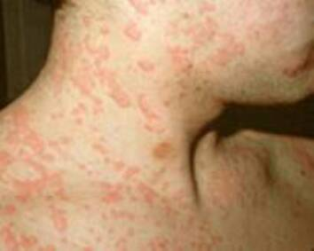 Skin Rash From Mold Exposure ...........Mold in the home